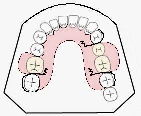 Gigi Tiruan Sebagian Lepasan (Removable Partial Denture)