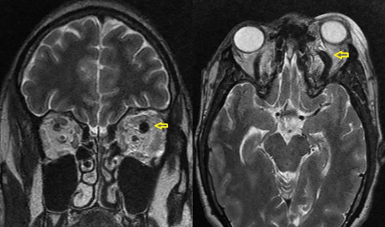Dr Balaji Anvekar\'s Neuroradiology Cases: Superior Ophthalmic Vein