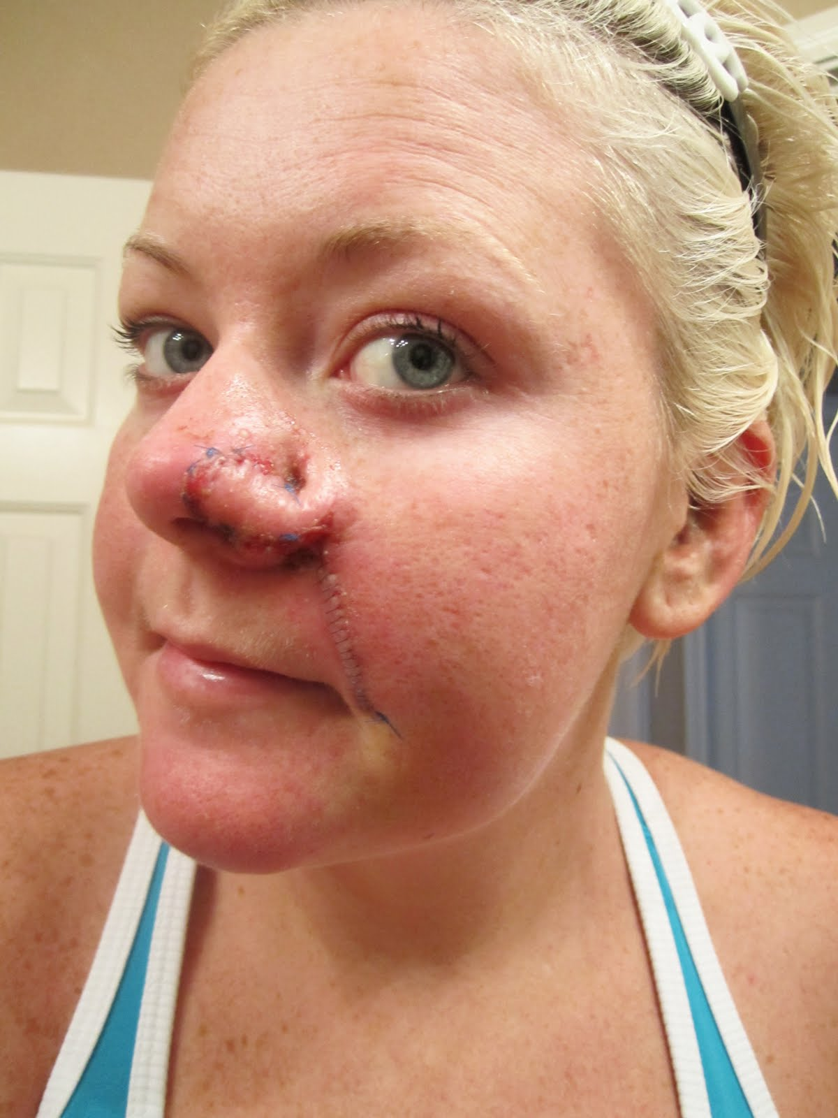 Swollen Nostril Nose Ring