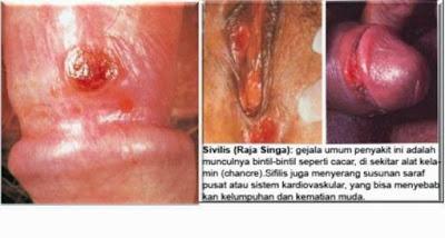 Antibiotik Penyakit Sipilis