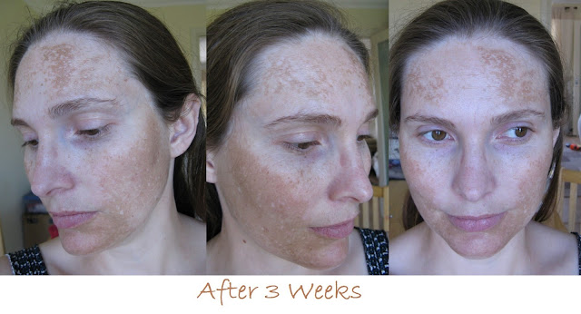Dark spot corrector before and after