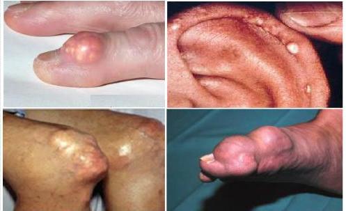 bệnh gout gây ra nhiều biến chứng nguy hiểm