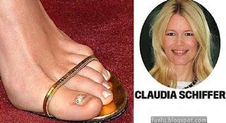 +Ugly feet celebrities+(6) Ugly Feet Of The Celebrities
