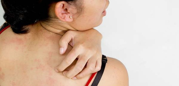 Sakit Biduran atau Kaligata