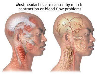 ஒற்றை தலைவலி, மைக்ரேன் தலைவலி, ஒரு பக்க தலைவலி, one side head ache, maigrane thalaivali, otrai thalaivali,