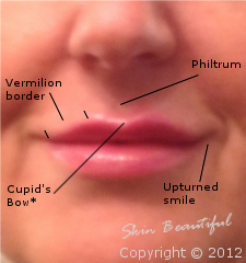 Lip enhancement after treatment
