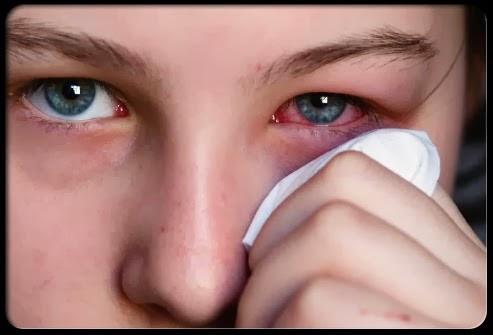 Mengucek Mata Bisa Mengakibatkan Kebutaan