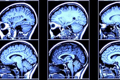 Ini Perbedaan Otak Kriminal dan Bukan Saat Dipindai