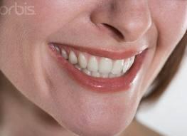 Cara memutihkan gigi secara cepat