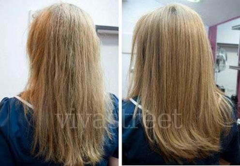 La caída de los cabello las vitaminas в12 en 6