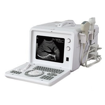usg logiq 500,usg portable toshiba,usg medison sonoace 8000,supplier usg 4 dimensi,usg hewan,harga usg mindray dp 50,alat usg untuk hewan,jual alat usg 4 dimensi,aparat usg mindray,usg mindray dp 3300,beli alat usg,harga mesin usg kehamilan,aparat usg samsung,portable usg machine india,harga usg 4d portable siui cts-8800,usg supplier diversity,usg edan dus 3 vet opinie,distributor usg indonesia,daftar harga alat usg 4 dimensi,usg logiq p6 pro,usg portable harga,alat kebidanan usg,alat usg mata,usg samsung indonesia,usg second look tile,aparaty usg mindray,harga alat usg mindray,alat yang digunakan untuk usg,usg samsung r7,harga mesin usg portable,usg medison r7,usg voluson e8 expert,usg siui,usg samsung medison indonesia,jual usg dp 10,usg printer kagidi teknik sartnamesi,penggunaan alat usg dari konsep gelombang,usg aloka ssd 4000,usg logix basic,mesin usg portable,harga usg mindray dp 10,jual usg murah,usg ge logiq 400,usg 4 dimensi siui,alat usg sapi,usg merk medison,usg mindray dc-3,harga usg portable mindray,usg sonoscape,probe usg ipad,usg ge logiq,