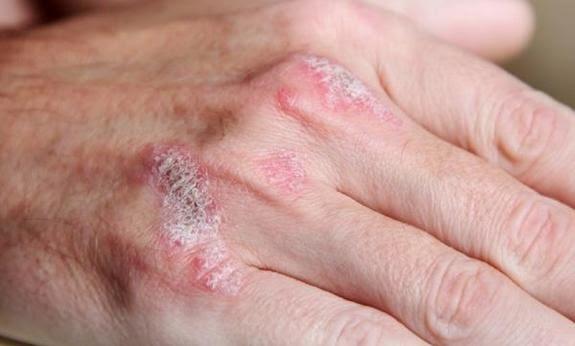 pencegahan penyakit psoriasis