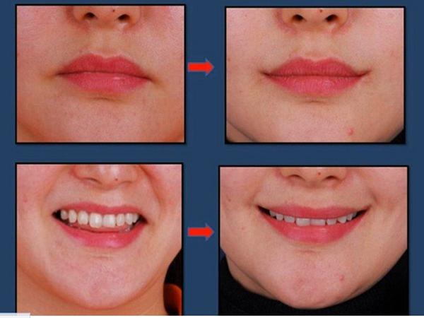 Nova tendência em cirurgia plástica: sorriso definitivo