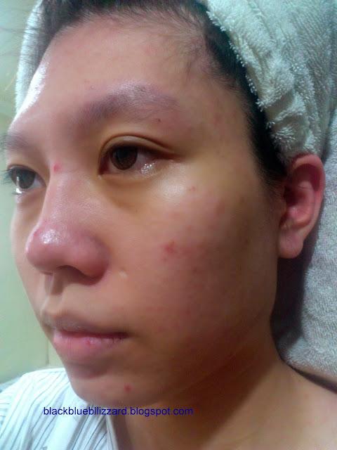 natural soap, cinnamon soap, oat soap, natural ingredient, cinnamon for dark spots, cinnamon for acne, oat for acne, oat for oily