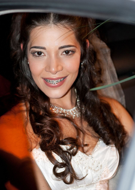 celebrity braces hot bride in braces orthodontic braces wedding dress