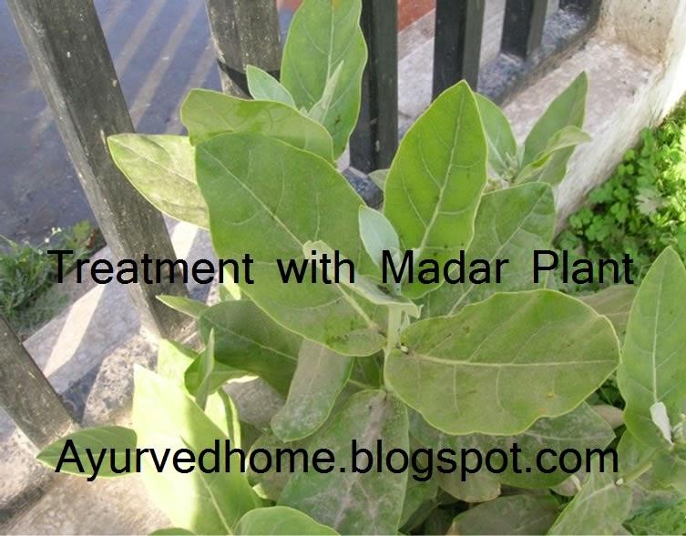 Aak ke Paudhe se Upchaar , Madar plant and use as Ayurvedic medicines for goitre or dracunculiasis