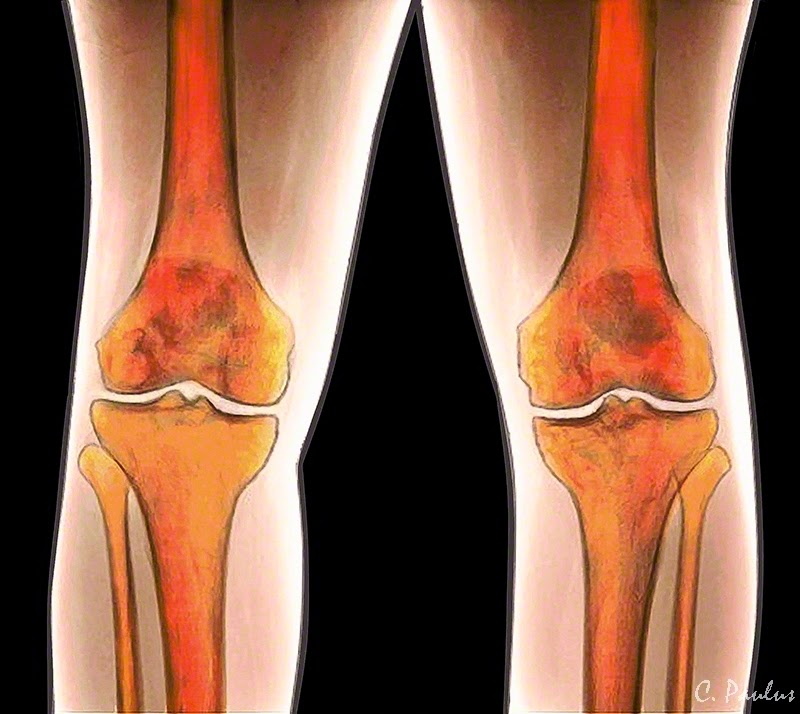 AP Color Knee X-Ray Image showing Normal Knee Anatomy