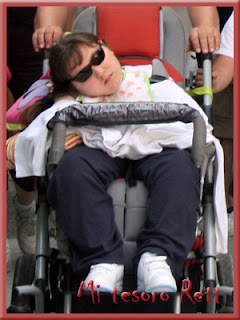 Escoliosis síndrome de rett