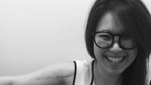 #WeLoveOvey | Ovey Yeung Loves You Back | hit-and-run victim | Scars Are Beautiful