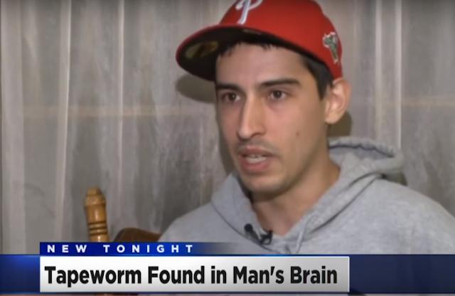 أطباء يكتشفون دودة شريطية داخل مخ شاب