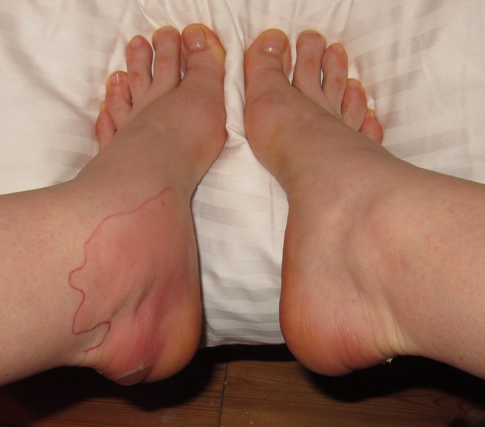 Cellulitis on the feet: how to get rid 73