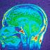 Cientistas alertam: ''Fumar maconha desfigura o seu cérebro e reduz a massa cinzenta''