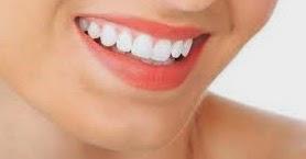 Cara Mudah Membuat Gigi lebih Putih dan Sehat