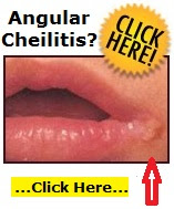 is angular cheilitis contagious