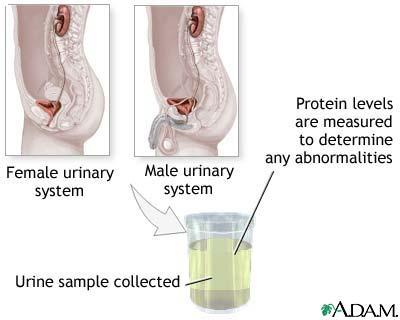 bence jones protein test procedure pdf