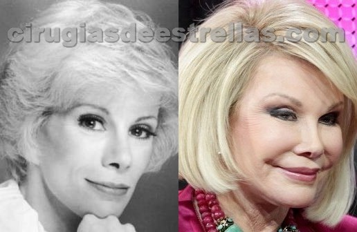 Joan Rivers antes y después