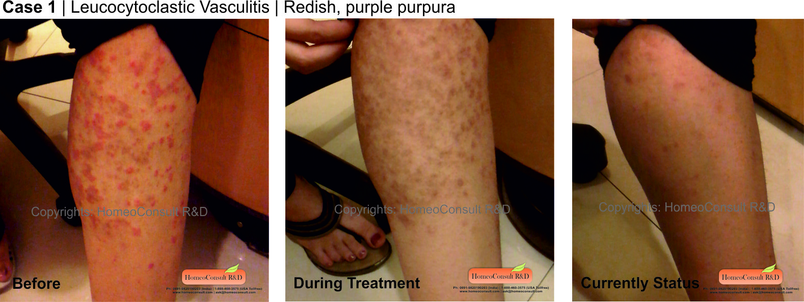 What is Vasculitis, Symptoms of the disease and its treatment