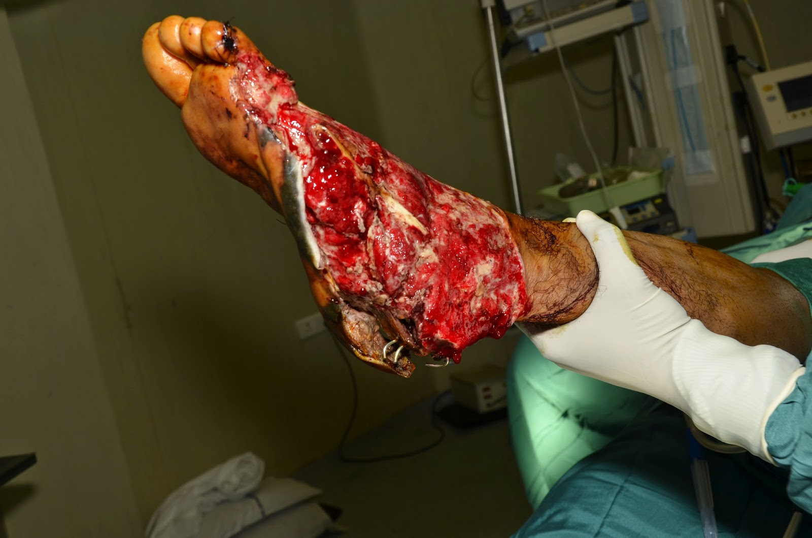 FOOT CRUSH INJURY - HEEL PAD AVULSION - COMMUNITED CALCANEAL FRACTURE -3.bp.blogspot.com