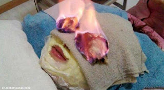 Huo Liao, Perawatan Kecantikan Dengan Cara Membakar Wajah