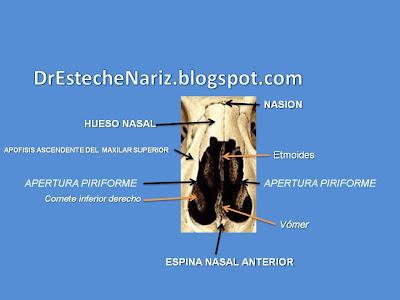 Presentaci%25C3%25B3n1 Fractura de base de pirámide nasal   Nasenkorrektur geschlossene Technik   16