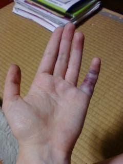 spricka i fingret