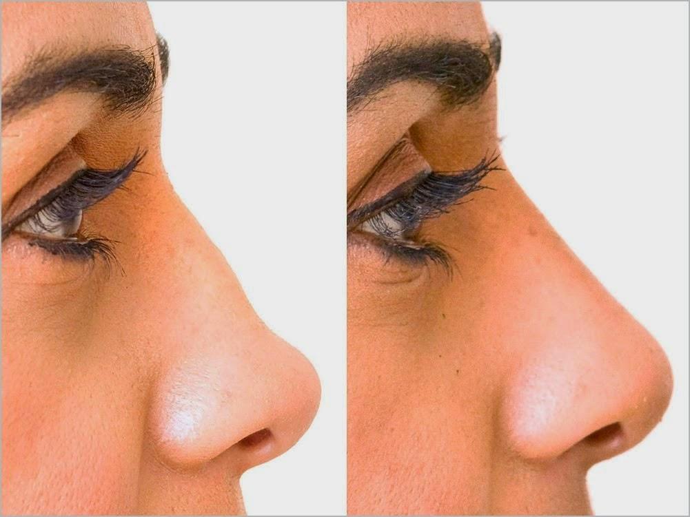 كيف تخفين عيوب أنفك