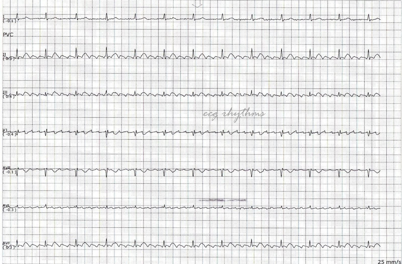 tachycardia and bradycardia