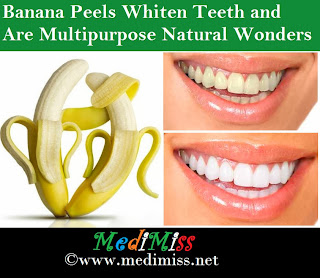 Banana Peels Whiten Teeth and Are Multipurpose Natural Wonders
