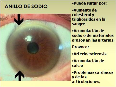 La várice varicosa troksevazin