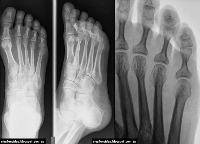 El esfenoides: Fractura de falange. 2 imágenes 1 caso.