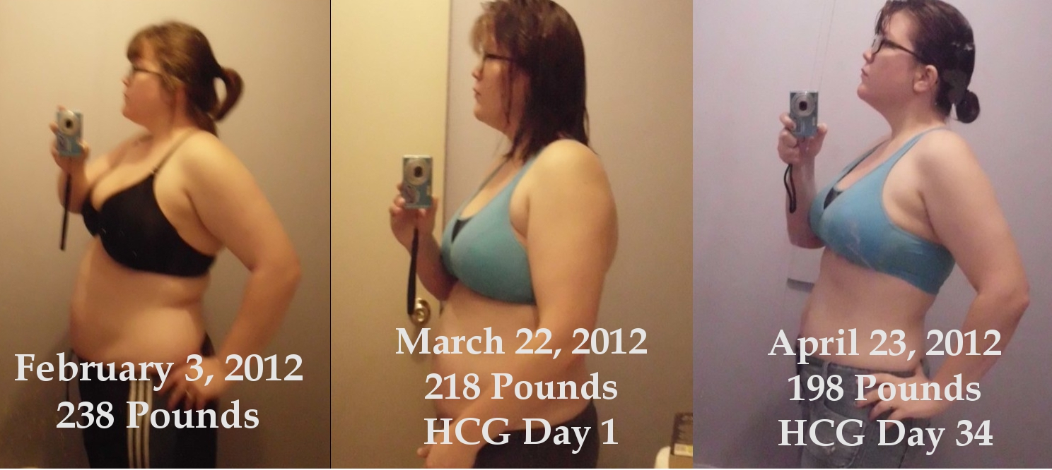 Hcg Injections For Weight Loss Reviews