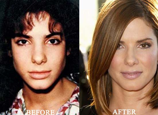 sandra bullock plastic surgery before and after nose job and botox