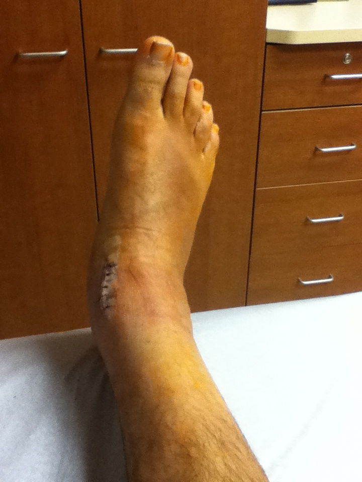 Journey through a broken ankle
