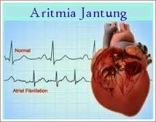 Obat Jantung Aritmia Herbal