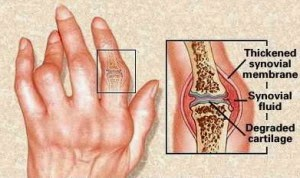 obat asam urat di jari tangan