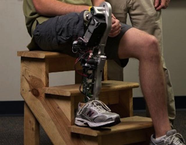 New-Bionic-Leg.jpg