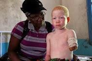 A triste história dos albinos da Tanzânia.
