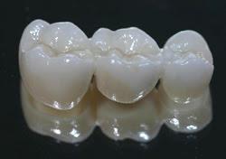 Carroll Dental Lab Crystal Diamond Zirconia