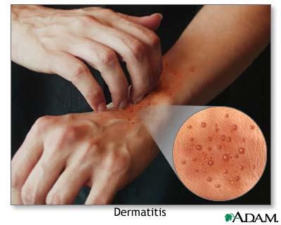 EKSFOLIATIF menjadi penyebab termasuk psoriasis, dermatitis atopik, dan dermatitis kontak 2