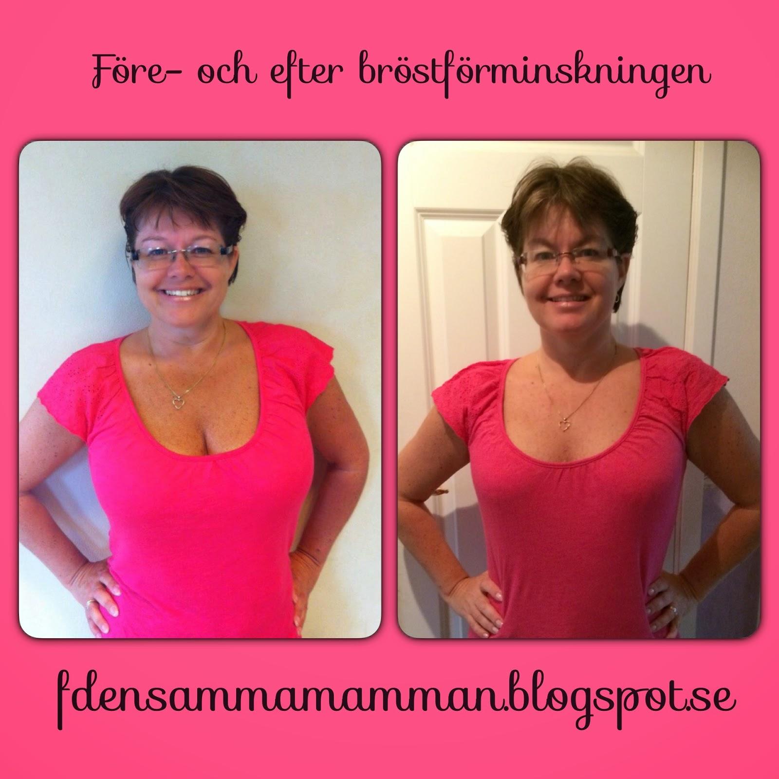 oskyldig massage stort bröst nära Göteborg